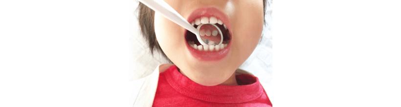 歯科 費用 子供 矯正