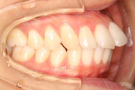その歯並びインビザラインでどう治すの?〈上顎前突(出っ歯)編 ...